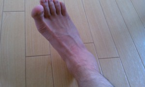 いわゆる足をひねった状態